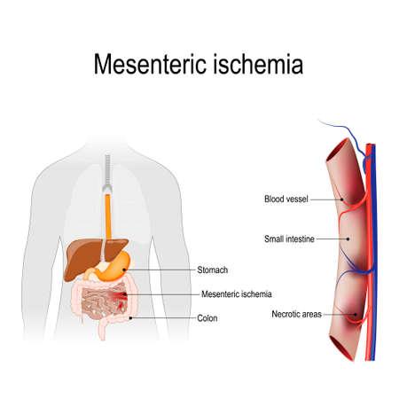 La isquemia mesentérica es una lesión en el intestino delgado que se produce debido a la falta de suministro de sangre. Silueta humana con órganos internos. Ilustración de vector para uso biológico, científico y médico.
