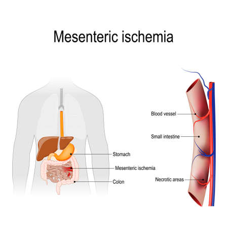 Mesenteric ischemia is an injury to the small intestine occurs due to not enough blood supply. Human silhouette with internal organs. Vector illustration for biology, scientific, and medical use. Imagens - 106910644