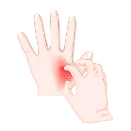 démanger. Mains humaines atteintes de dermatite. Illustration vectorielle à usage biologique, scientifique et médical.
