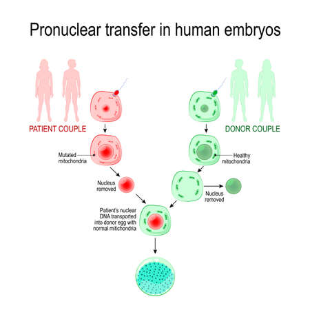 babies of three-parent. inherited mitochondrial diseases. Pronuclear transfer in human embryos. Vector diagram for educational, medical, biological and science use