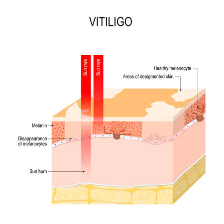 Vitiligo. Is a skin condition characterized by portions of the skin losing their pigment. It occurs when skin pigment cells (melanocytes) die or are unable to function. Vector diagram for educational, medical, biological and science use