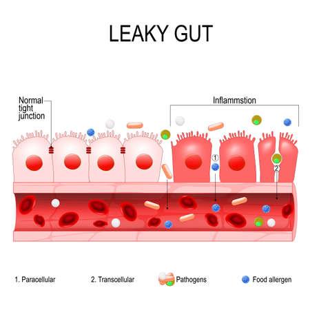 undichter Darm. Zellen auf der Darmschleimhaut hielten fest zusammen. Im Darm mit Zöliakie und Glutenempfindlichkeit lösen sich diese engen Verbindungen. Autoimmunerkrankung. Vektordiagramm für pädagogische, medizinische, biologische und wissenschaftliche Verwendung