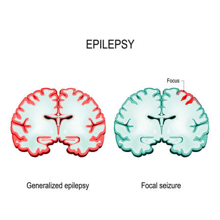Epilepsy is a condition characterized by recurrent and unpredictable seizures. Brain Sections. primary generalized epilepsy and focal seizures. Vector diagram for educational, medical, biological and science use