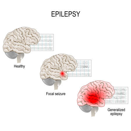 Epilepsy is a condition characterized by recurrent and unpredictable seizures. Human brain. EEG of healthy brain and epileptic seizure. primary generalized epilepsy and focal seizures. Vector diagram for educational, medical, biological and science use Ilustrace