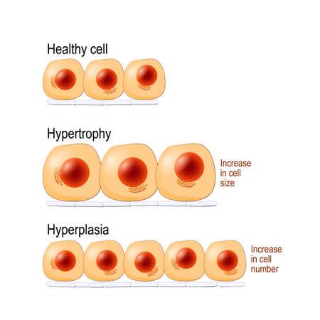 Cellules normales, l'hypertrophie est une augmentation de la taille des cellules, l'hyperplasie résulte d'une augmentation du nombre de cellules. différent. Diagramme vectoriel à usage éducatif, médical, biologique et scientifique