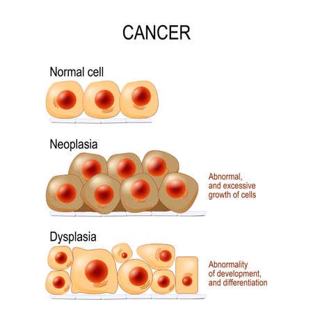 Células normales, displasia (anomalía del desarrollo y diferenciación) y neoplasia (crecimiento anormal y excesivo de células). diferente. Diagrama vectorial para uso educativo, médico, biológico y científico.