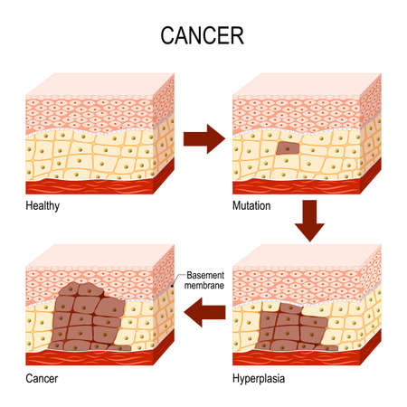 developing cancer. from Normal cells to Mutation, Hyperplasia, and Malignant tumor. Neoplasia. Vector diagram for educational, medical, biological and science use Ilustração