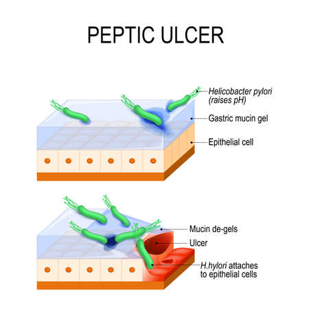 Peptic ulcer and bacterial infection. This diagram illustrates mechanism by which Helicobacter Pylori gets across the mucus gel to epithelial cells. bacterium secretes substance that elevating the pH. Vector illustration for educational, Microbiological, biological, medical and science use