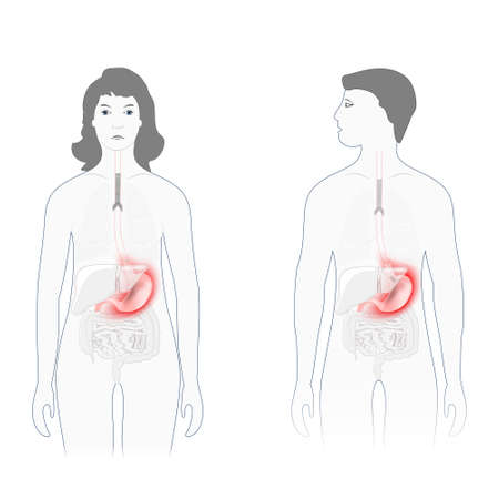 Stomach pain. Male and female silhouette with highlighted of stomach. Human anatomy. Vector diagram for educational, biological, medical and science use Vector Illustration