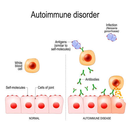 Autoimmune disorders. For example Gonorrhea (sexually transmitted infection) and Arthritis. Antigens of bacterium Neisseria gonorrhoeae are similar to self-molecules of healthy joint cells. normal immune response can result in the production of antibodies that bind to healthy cells of joint, and caused of inflammation