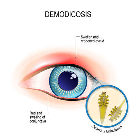 demodicosis of eyelid and red eyes. Close-up demodex through magnifying glass. Demodex folliculorum is a type of skin mite that lives in hair follicles. Human anatomy