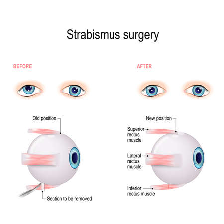 Strabismus Surgery. Hypertropia. Eye muscle recession. Extraocular Muscle Anatomy. surgeon alters the attachment site of the muscle, cutting the muscle from the surface of the eye and reattaching it further back on the eyeball, away from the front of the eye.