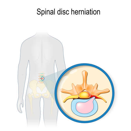 Spinal disc herniation. Back pain. Human silhouette with highlighted (red color) lumbar spine and Pelvis. Prolapse of intervertebral disc close-up. Vector illustration for your design, educational, biology, scientific, and medical use. Иллюстрация