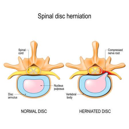 Spinale hernia. Rugpijn. Normale schijf- en spinale hernia in nekwervels. Vectorillustratie voor uw ontwerp, educatief, biologie, wetenschappelijk en medisch gebruik.
