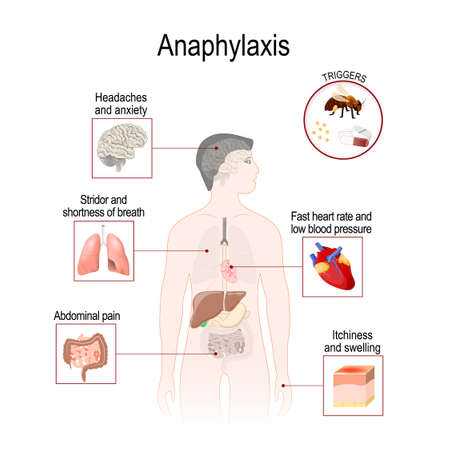 Anaphylaxis is a serious allergic reaction that may cause death. Human silhouette with highlighted internal organs. Vector illustration for medical, biological, and educational use