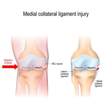 Przyśrodkowe urazy kolana. anatomia stawów. Ilustracja wektorowa do użytku biologicznego, medycznego, naukowego i edukacyjnego Ilustracje wektorowe