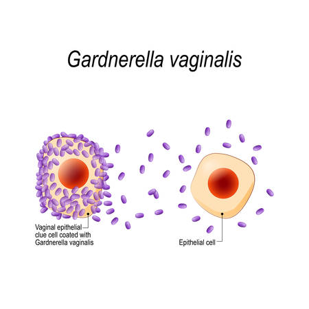 Gardnerella vaginalis. Genital infection. Vaginal epithelial clue cell coated with bacteria. bacterial vaginosis. sexually transmitted infections. illustration for biological, science, medical use. 向量圖像