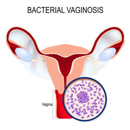 Bacterial vaginosis. Uterus and close-up of Gardnerella vaginalis (Bacteria that caused the disease). sexually transmitted infections. illustration for biological, science, medical use.