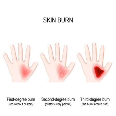Degree burns of skin. step of burn. Human hand. Vector illustration for biological, science, and medical use.