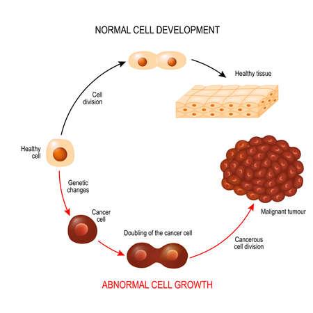 Célula cancerosa y célula normal. Tejido sano y tumor maligno. Ilustración que muestra el desarrollo de la enfermedad cancerosa. Diagrama vectorial para su diseño, educativo, biológico, científico y médico.