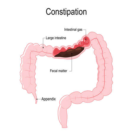 constipation vector diagram represent the human large intestine rh 123rf com