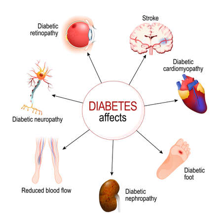 Diabetes Affects. Complications of diabetes mellitus: nephropathy, Diabetic foot, neuropathy, retinopathy, stroke; Reduced blood flow and cardiomyopathy. Vector diagram for educational, medical, biological and science use