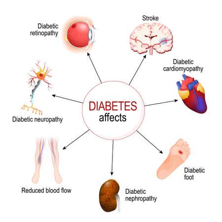 Il diabete colpisce. Complicazioni del diabete mellito: nefropatia, piede diabetico, neuropatia, retinopatia, ictus; Flusso sanguigno ridotto e cardiomiopatia. Diagramma vettoriale per uso educativo, medico, biologico e scientifico