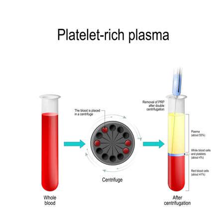 Plazmę bogatą w osocza. Autologiczne osocze kondycjonowane to koncentrat osocza bogatopłytkowego pochodzącego z pełnej krwi, odwirowanego w celu usunięcia czerwonych krwinek. probówka do badania krwi, wirówka, strzykawka i probówka z warstwami składników krwi Ilustracje wektorowe