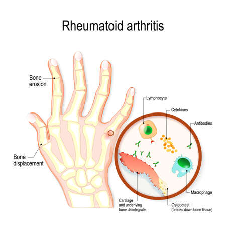 Rheumatoid Arthritis (RA) is an auto immune disease and inflammatory type of arthritis that usually affects joints. hand with rheumatoid arthritis and typical joint swelling and deformation of the fingers and knuckles. bone anatomy. vector illustration for medical use