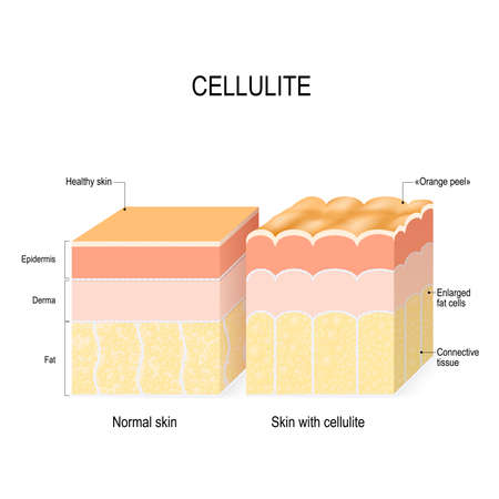celulitis. Corte transversal de una piel sana y piel de naranja. ilustración vectorial para uso médico, educativo, biológico y científico. Protección de la piel Ilustración de vector