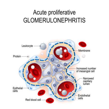 Glomérulonéphrite proliférative aiguë. trouble des glomérules et des petits vaisseaux sanguins dans les reins. maladie infectieuse. Illustration vectorielle à usage biologique, éducatif, médical et scientifique