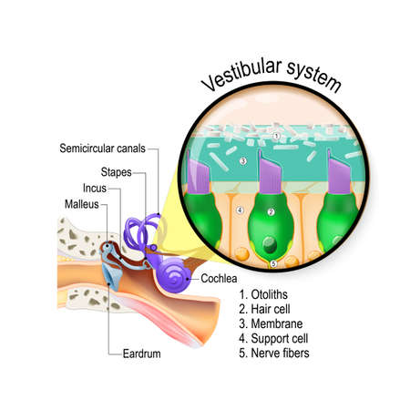 Vestibular system. is the sensory system for sense of balance, spatial orientation, and coordinating movement. inner ear with cochlea, stapes, incus, malleus, eardrum and semicircular canals. Closeup of hair cells in a macula.