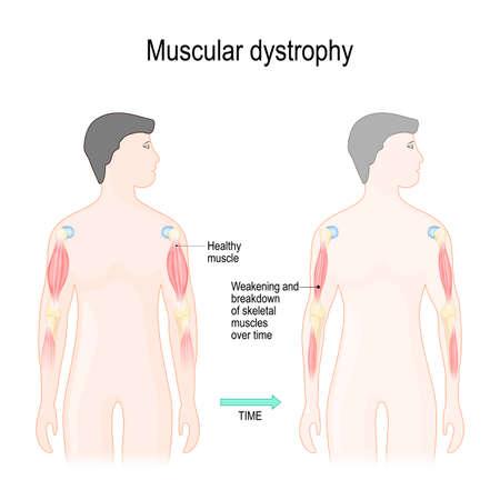 La distrofia muscular es una enfermedad de los músculos que provoca el debilitamiento y la degradación de los músculos esqueléticos con el tiempo. Ilustración vectorial para uso educativo, científico y médico.