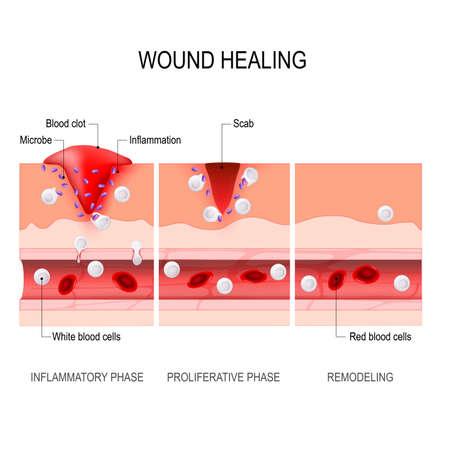 상처 치유 과정. 지혈, 염증, 증식, 성숙 및 리모델링. 조직 손상 및 염증. 면역 체계. 의료, 교육 및 과학적 사용을 위한 벡터 다이어그램입니다.