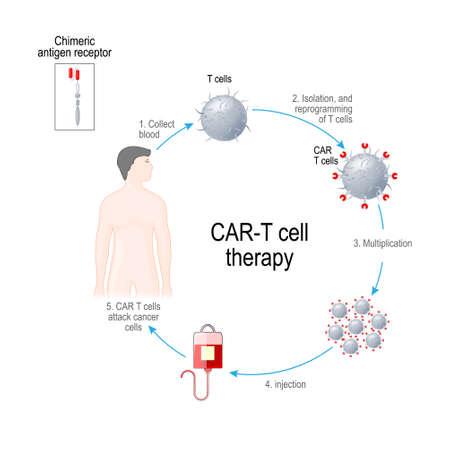 Terapia de células T con CAR. Los receptores de leucocitos artificiales son proteínas que se han diseñado para la inmunoterapia del cáncer (destrucción de células tumorales). manipulado genéticamente. Diagrama vectorial para uso médico, educativo y científico.