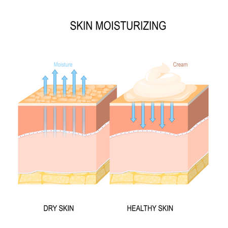Skin moisturizing. Dry and healthy skin with cream, foam or lotion. Vector illustration for medical, skin care, biological, educational and science use