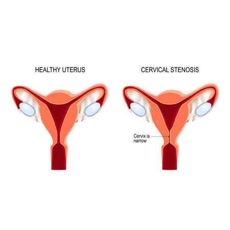 Stenosis of uterine cervix may impact fertility by impeding the passage of semen into the uterus. Vector illustration for medical, biological, educational and science use Illustration