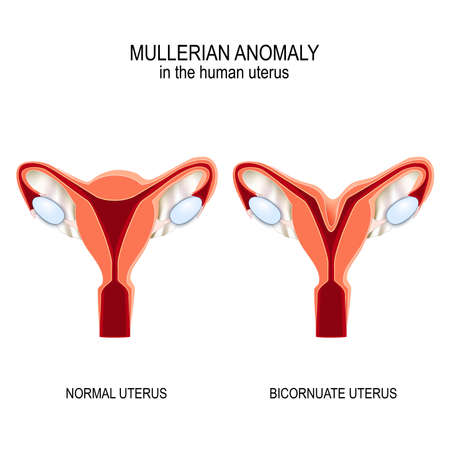 Mullerian anomaly In the human uterus. Normal womb and Bicornuate uterus. Vector illustration for medical, biological, educational and science use