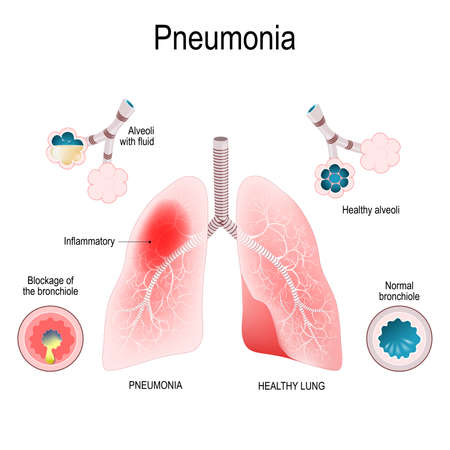 Pneumonia symptoms. closeup lungs, bronchioles and alveoli. Difference and Comparison of healthy lungs and lungs with pneumonia. Structure of human respiratory system. Vector illustration for medical, biological, educational and science use Vector Illustration