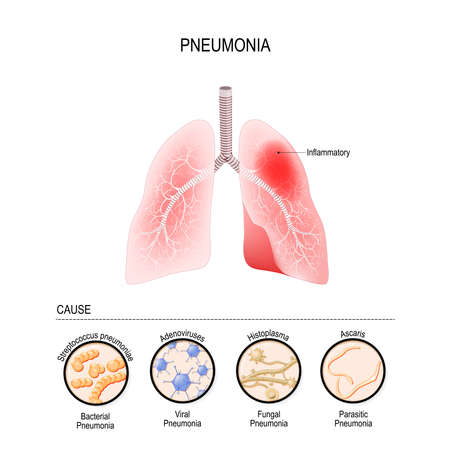 Pneumonia is caused by infection with viruses, bacteria, fungi and other microorganisms (for example, ascaris). closeup lungs, and bronchioles. human respiratory system. Vector illustration for medical, biological, educational and science use