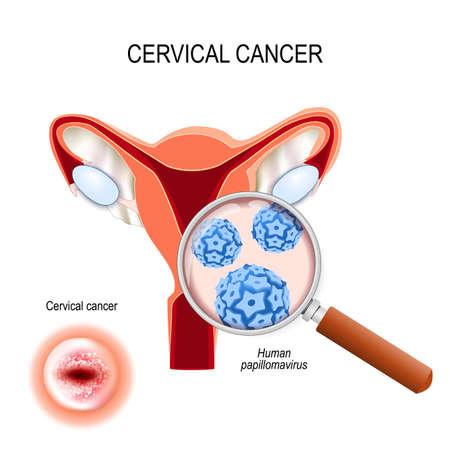 Cáncer de cuello uterino. El carcinoma es una neoplasia maligna que surge de las células del cuello uterino. Primer plano de la infección por virus del papiloma humano (VPH). vista en corte del útero y el cuello uterino que se ve desde abajo. Ilustración vectorial para uso médico, biológico, educativo y científico. Ilustración de vector