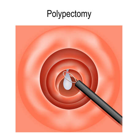 Colorectal polyp and Polypectomy. Vector diagram for medical, biological and scientific use Illustration
