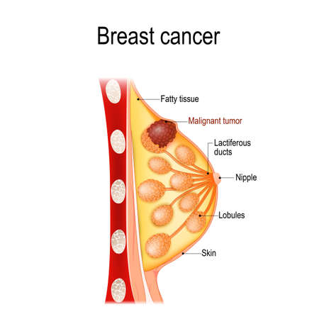 Rak piersi. Przekrój gruczołu sutkowego z guzem. Anatomia człowieka. Schemat wektorowy do użytku medycznego