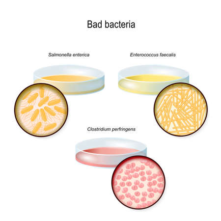 A Petri dish with bacterial colonies. Gut flora. Close-up of bad bacteria: Clostridium perfringens, Enterococcus faecalis, and Salmonella enterica. Vector diagram for educational, medical, biological, and scientific use