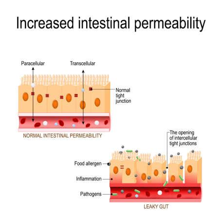 intestino permeable. La apertura de uniones estrechas intercelulares (aumento de la permeabilidad intestinal). las células del revestimiento intestinal se mantienen juntas. en el intestino con enfermedad celíaca y sensibilidad al gluten, estas uniones estrechas se deshacen. desorden autoinmune. Diagrama vectorial