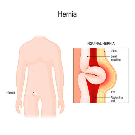 Inguinal Hernia. bowel exit through the wall of the abdomen cavity. Vector diagram for educational, medical, biological, and scientific use