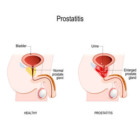 Prostatitis is swelling and inflammation of the prostate gland, that directly below the bladder in men. male reproductive system (Seminal vesicle, Vas deferens, Prostate gland, Testicles and Epididymis). Vector diagram for educational, medical, biological and science use. Vector Illustration
