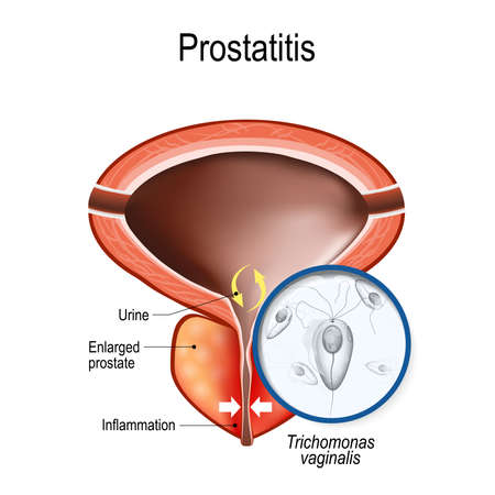 prostatitis and close-up of infection that caused the disease. Trichomonas vaginalis in men causes asymptomatic urethritis. Vector illustration for educational, biological, medical, and scientific use