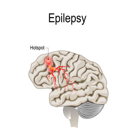 Epilepsy is a condition characterized by recurrent and unpredictable seizures. Human brain with hotspot hotspot of epilepsy. Vector diagram for educational, medical, biological and science use Ilustrace
