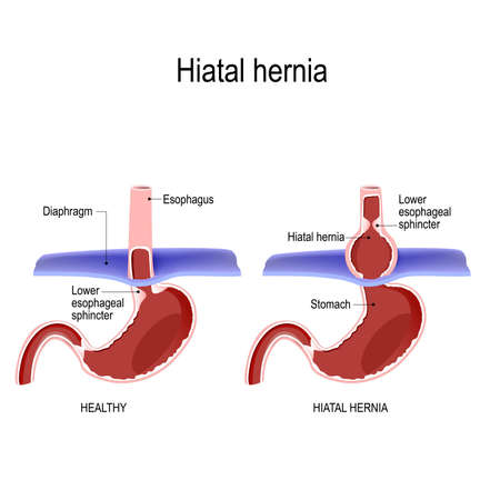 Hiatal hernia. Vector diagram of Normal anatomy and sliding hiatal hernia. illustration for biological, science, and medical use Vector Illustration